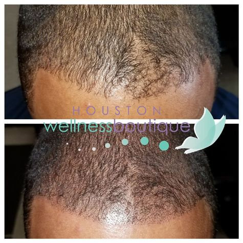Hairline Scalp Micropigmentation