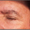 Avail Of Professional Blemish Removal Product at a Price of $100