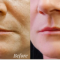 """""""REVERSE AGE AND REMOVE YOUR PESKY WRINKLES TODAY"""""""